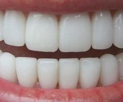 Αισθητική οδοντιατρική και ζάχαρο; Χαμογελάστε και πάλι άφοβα!
